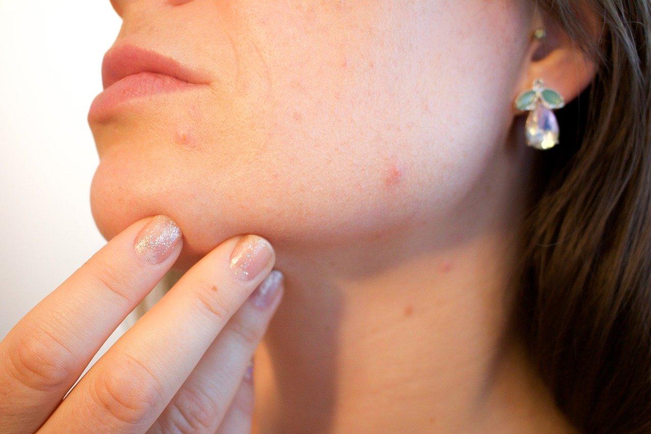 Wizyta u dermatologa. Jak się do niej przygotować?